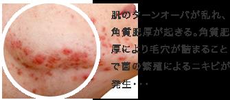 肌のターンオーバが乱れ、角質肥厚が起きる。角質肥厚により毛穴が詰まることで菌の繁殖によるニキビが発生・・・